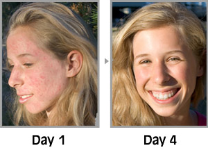 how to get a clear face in 3 days